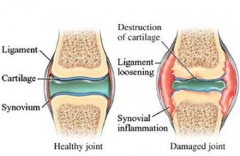 healthy and damaged joints