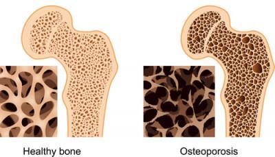 Healthy Bone vs Osteoporosis Bone