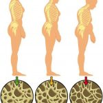 Normal Bone Mass vs Osteoporosis Bone Mass