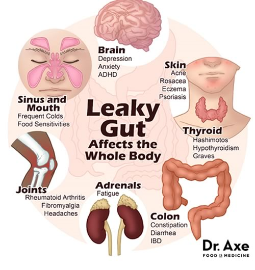 The health consequences of leaky gut