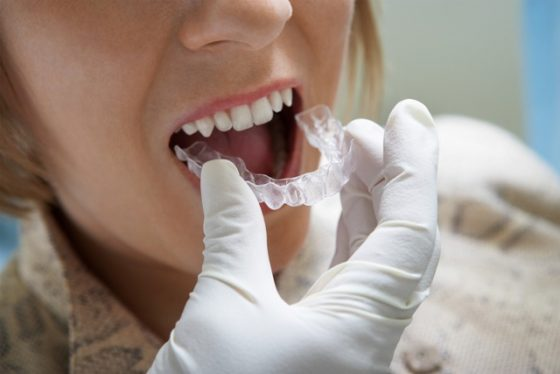 Invisalign treatment is an aesthetic and almost invisible technique of straightening your teeth without the visibility and restrictions that come with traditional metal braces.