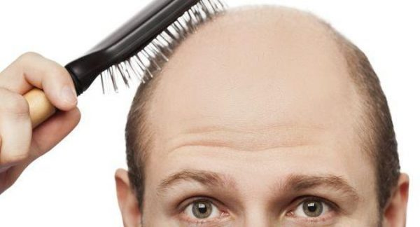 Options for Hair Transplant